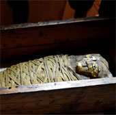 Chẩn đoán viêm ruột thừa cho xác ướp 2100 năm tuổi