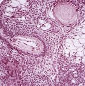Biến tế bào gốc thành cỗ máy chữa ung thư