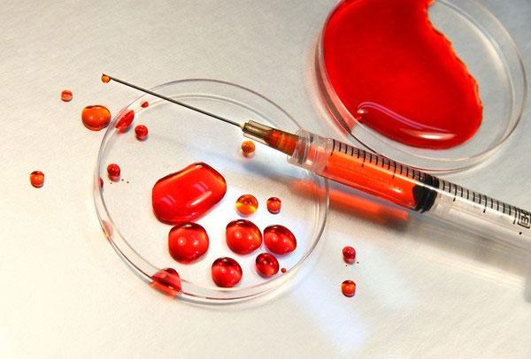 Phương pháp xét nghiệm máu giúp phát hiện ung thư sớm 5 năm