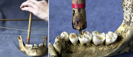 Khám phá kỹ thuật nha khoa thời cổ đại