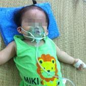 Viêm phổi ở trẻ nhỏ - Bệnh nguy hiểm nhưng khó nhận biết