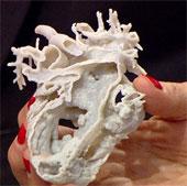 Bé gái được cứu sống nhờ tim 3D