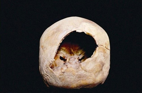 Phẫu thuật não có thể diễn ra cách đây 3.000 năm