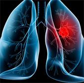Bệnh ung thư phổi và các giai đoạn