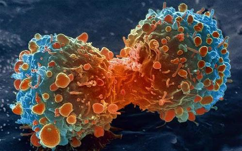 Tại sao ung thư tấn công giết chết con người