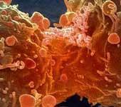 Tại sao ung thư tấn công giết chết con người?