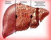 Ung thư gan - bệnh dễ chết khó phát hiện sớm