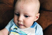 """Em bé Nam Phi mang vết bớt con số """"thần thánh"""" trên trán"""