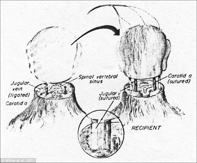Ca phẫu thuật ghép đầu người đầu tiên trong lịch sử sẽ tiến hành vào năm sau