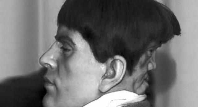 7. Người đàn ông có 2 khuôn mặt