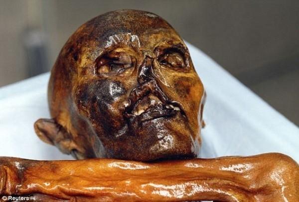Tế bào máu cổ nhất trên xác ướp băng Otzi