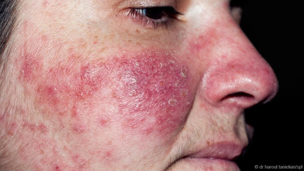 Demodex - Loài rận chuyên ký sinh trên... da mặt người