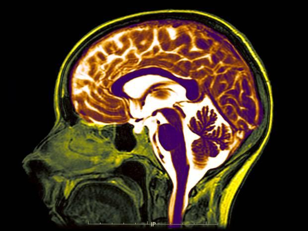 Não nhân tạo - cánh cửa để mở ra sự trường sinh
