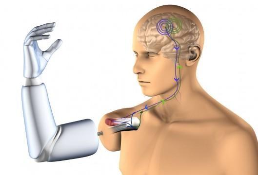Cánh tay robot cho người liệt toàn thân