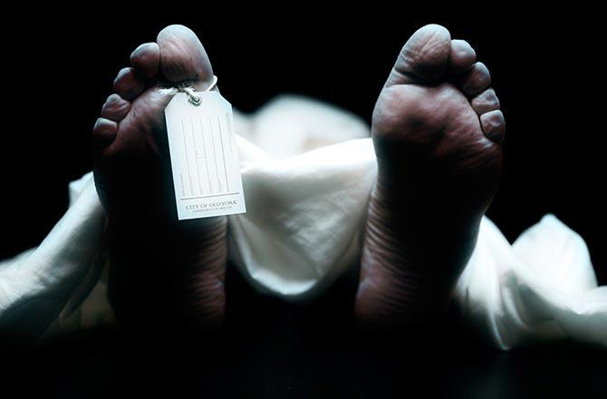 Điều gì xảy ra khi bạn hiến tặng cơ thể mình cho khoa học sau khi qua đời?