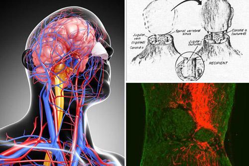 Cấy ghép đầu - cuộc chinh phục của các nhà giải phẫu tiên phong