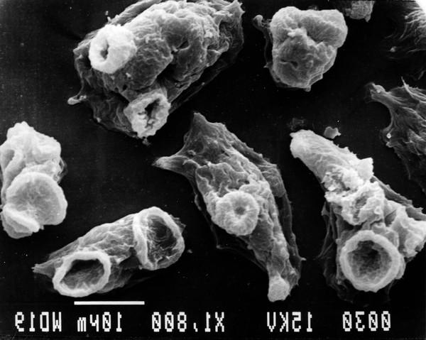Các loài ký sinh trùng thích làm tổ và ăn não con người