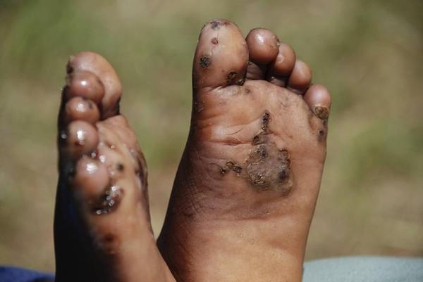 Kinh dị những loài sâu bọ gây biến dạng cơ thể con người