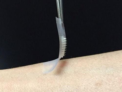 Miếng dán thông minh cho bệnh nhân tiểu đường