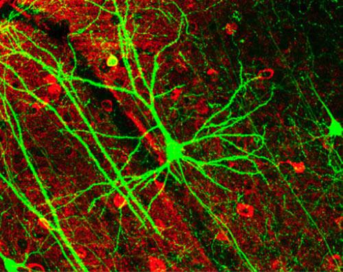 Nơron nhân tạo thay thế dây thần kinh trong não người