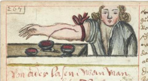 Những cách chữa bệnh đáng sợ thời Trung Cổ