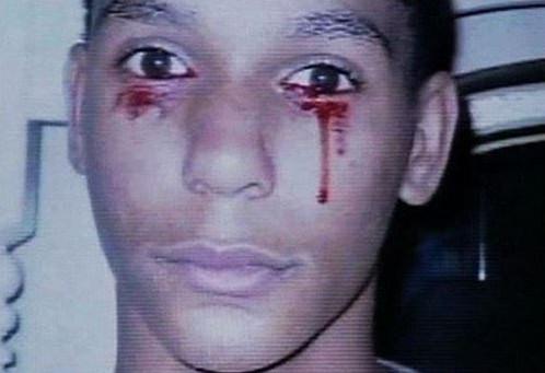 Calvino- Inman, cậu bé khóc ra máu
