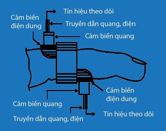 Việt Nam sắp có máy đo tiểu đường không cần chích máu?