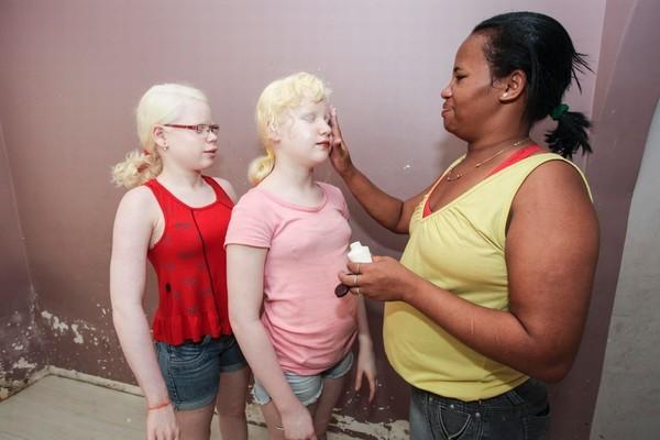 Vì sao cha mẹ da đen sinh con mắt xanh, da trắng?