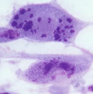 Hai phần ba dân số thế giới nhiễm virus lây qua đường tình dục