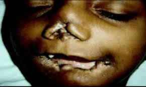 14 căn bệnh kỳ quái nhất thế giới