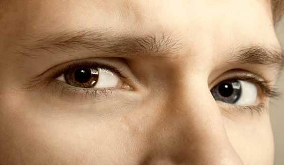Tại sao người có hai màu mắt khác nhau?