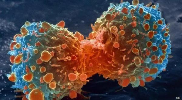 Vì sao chúng ta bị ung thư?