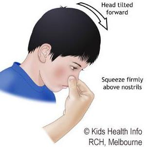 Xử trí khi trẻ chảy máu mũi