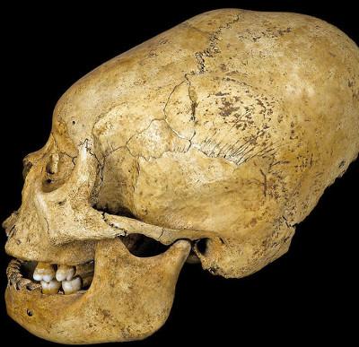 Tục kéo dài hộp sọ của bộ tộc Nam Mỹ