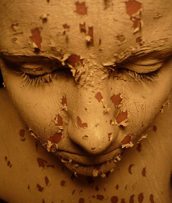 """Hội chứng """"sợ xấu"""" có thể hủy hoại cả một đời người"""