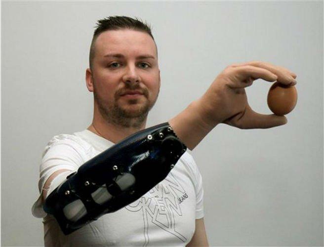 Bệnh nhân sử dụng cánh tay giả để cầm trứng.