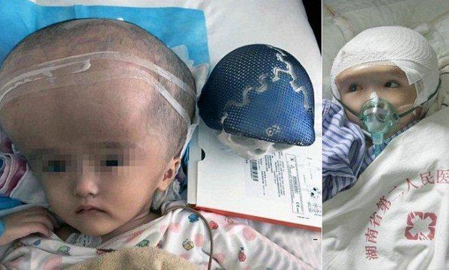 Bé gái Han Han là bệnh nhi đầu tiên bị não úng thủy được ghép thành công hộp sọ 3D.