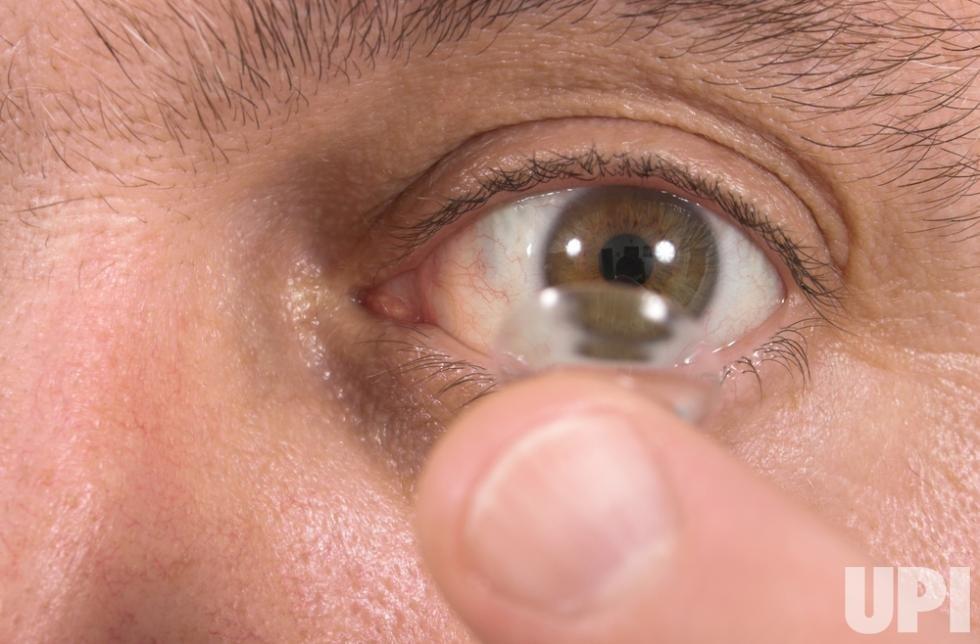 Thấu kính cấy vào mắt người.
