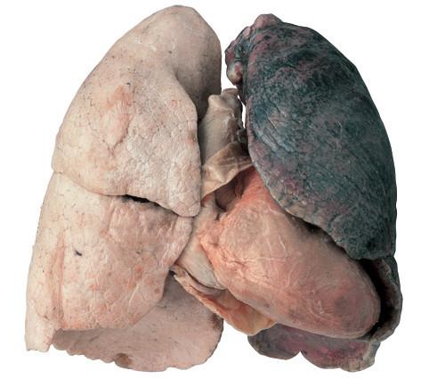 """Người có """"thâm niên"""" hút thuốc trên 5 năm thường có dấu hiệu viêm phế quản và ho. Đây là triệu chứng cảnh báo phổi của bạn đang gặp vấn đề."""