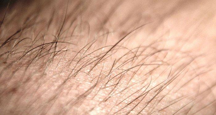 Lông tóc vẫn mọc sau khi chết?
