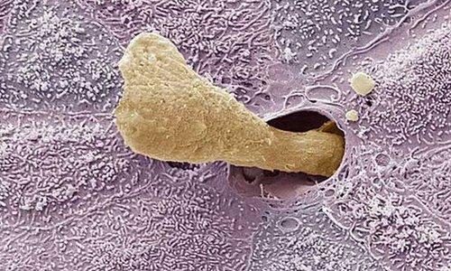 Ráy tai dưới kính hiển vi.