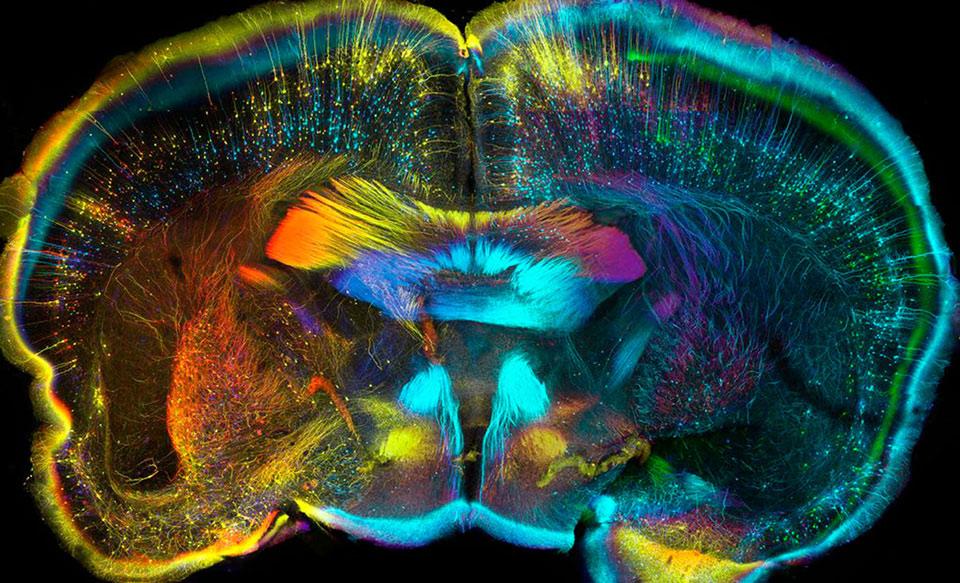 Bức ảnh chụp lại mặt cắt ngang của não một con chuột, cho thấy sự ngoạn mục và kỳ diệu không chỉ đến từ những thứ to lớn mà còn từ một bộ phận nhỏ bé trong cơ thể sinh vật.