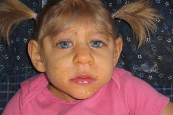 Một đứa trẻ mắc phải hội chứng não nhỏ.