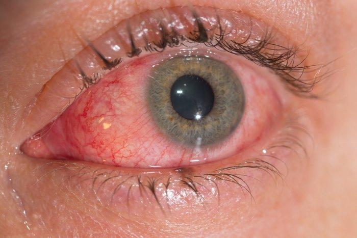 Đau mắt do virus Zika.