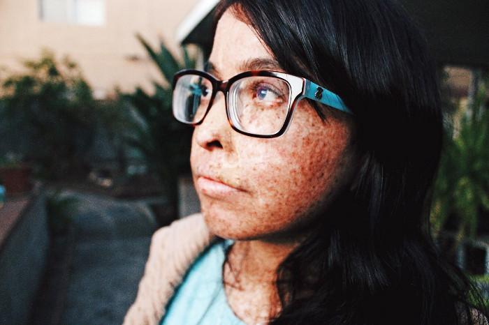 Andrea đang viết blog về bệnh tình của mình để động viên mọi người hãy biết yêu thương bản thân.