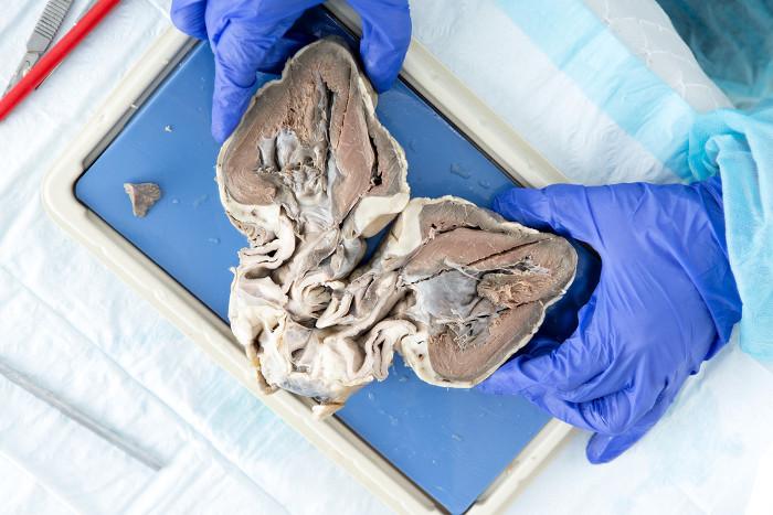 Những quả tim lai tạo được cấy ghép trên một số động vật có thể trở thành cứu cánh cho không ít bệnh nhân.