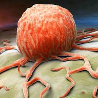 Bệnh nhân ung thư sẽ không còn chịu tác dụng phụ nhờ nghiên cứu mới