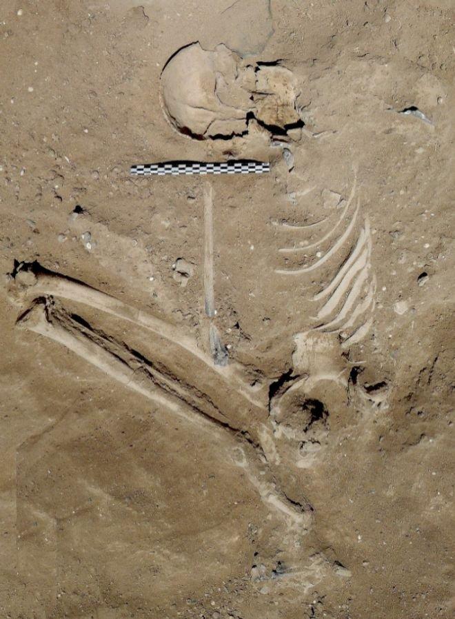 Bộ xương người đàn ông có dấu hiệu bị đánh bằng gậy gỗ.