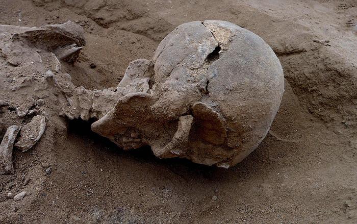 Phần xương sọ rạn nứt do ngoại lực của một nạn nhân trong vụ thảm sát.