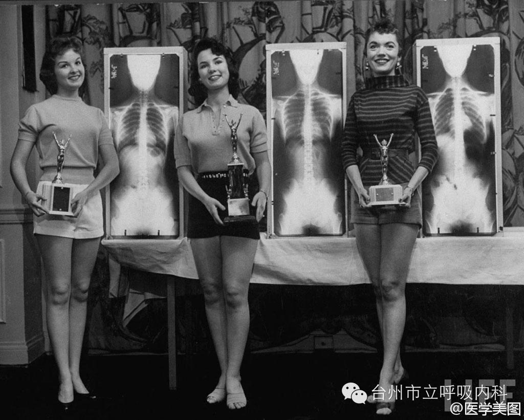 """Cuộc thi hoa hậu Tư thế chuẩn được diễn ra vào năm 1956 thu hút không ít """"mỹ nữ"""" tham gia. Ban giám khảo sẽ đánh giá thí sinh dựa trên hình chụp X-quang để có cái nhìn chân thực nhất về cơ thể của các người đẹp."""